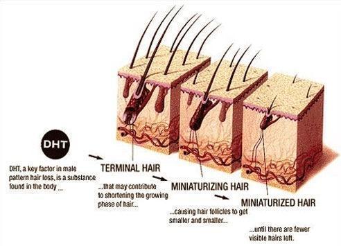 como crescer cabelo